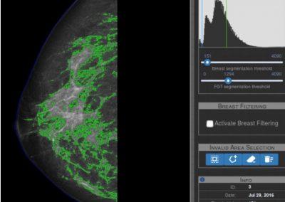 Detección cáncer de mama